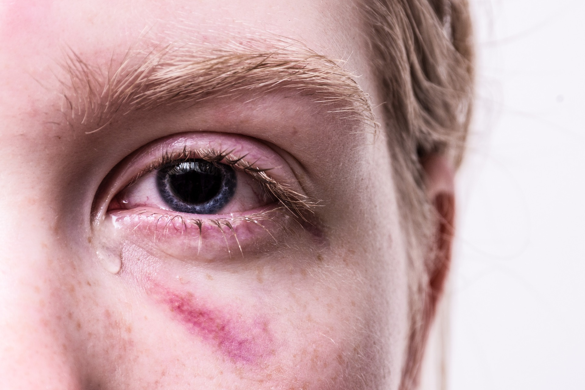 Pink Eye Infection Treatment